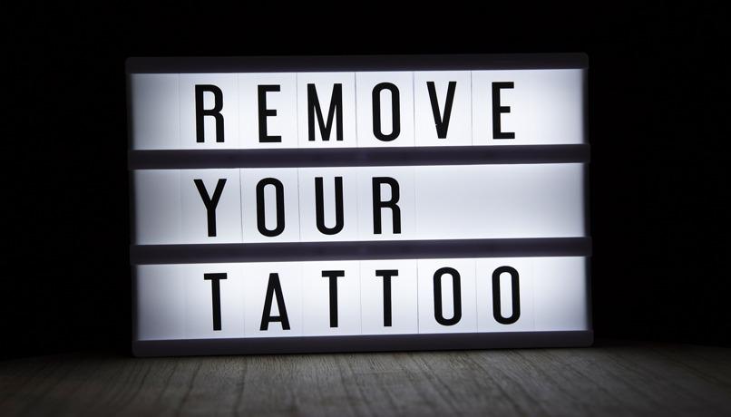 remueve tu tatuaje